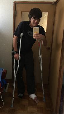 足の腫れ3