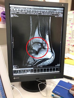 足の怪我 CTスキャン
