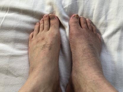 足の回復過程