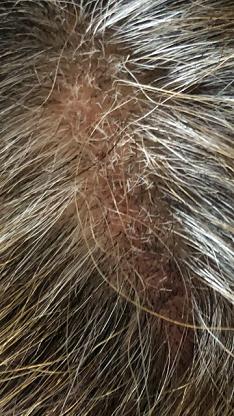 創価学会 美容師 頭皮炎症 ハゲ