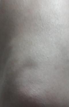 20141227