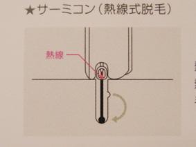 熱電子機脱毛 図