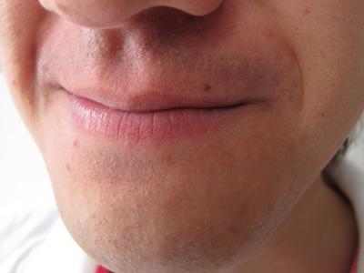 センスエピ照射後の髭