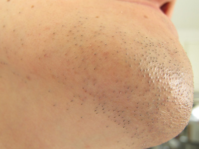 あごヒゲ脱毛効果が現れてる