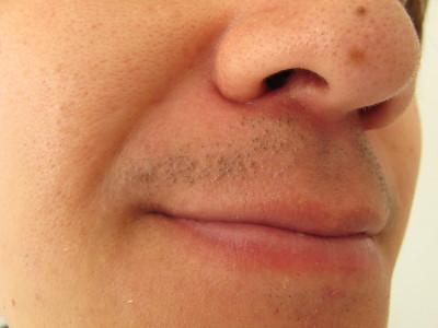 男性 鼻下 センスエピ2ヶ月半後