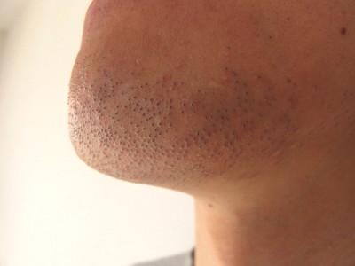 男性 ヒゲ センスエピ2ヶ月半後