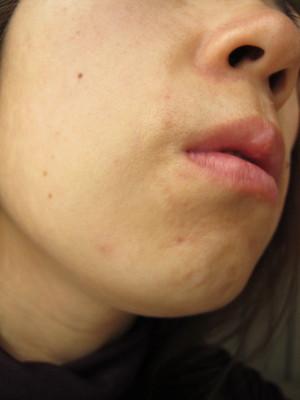 DHC薬用アクネコントロール 塗布後の顎