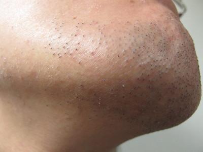 センスエピ5ヶ月後の髭