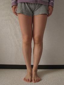 正面からの足