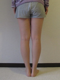 脚の測定113週目後ろから見た脚