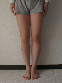 脚の測定115週目正面の脚