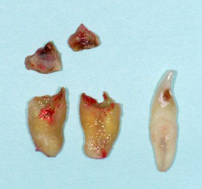 歯列矯正のための抜歯