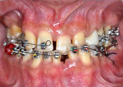 tac,歯列矯正,受け口