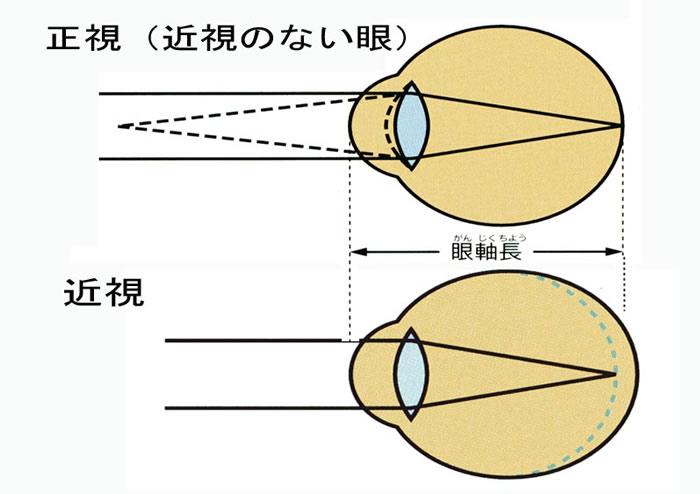 眼軸長.jpg