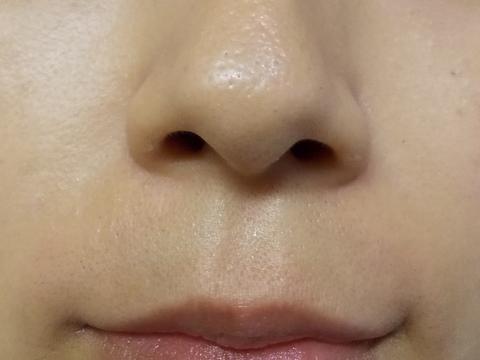 鼻の下産毛