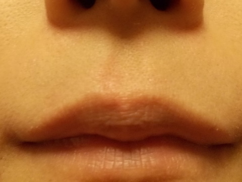 鼻の下 脱毛
