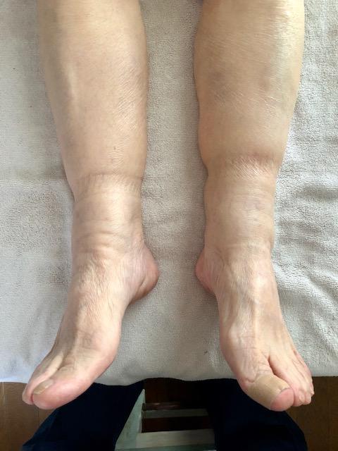 者 甲 むくみ 足 の 高齢 足の甲のむくみの原因で高齢者は?体内に水が滞ってしまう?