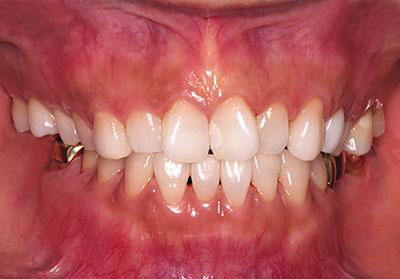 leica, m-p,dental,photo,ライカ,歯科,写真,画像,カメラ