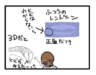 歯 抜歯 ひび 治療 割れ イラスト 漫画