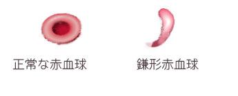 正常赤血球と鎌形赤血球