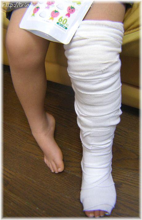左足負傷(骨にヒビ)の次男(5歳)。ギプスが痛々しいw