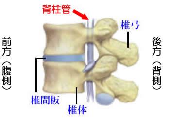 腰部脊柱管狭窄症とは? | 腰痛 ...