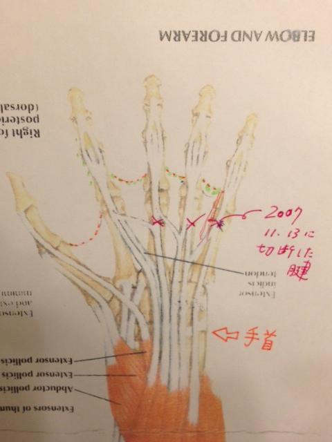 20121113手の腱と筋肉図03