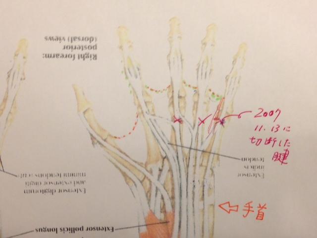 20121113手の腱と筋肉図02