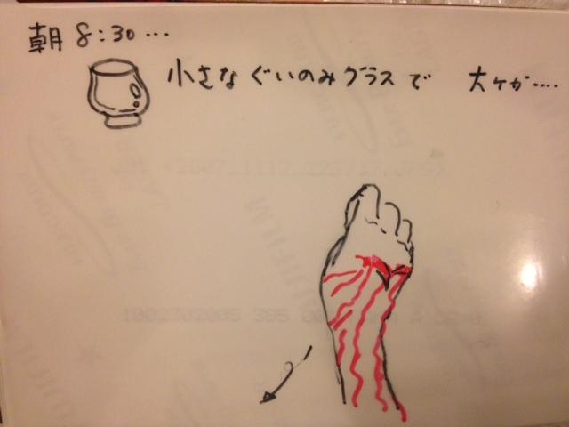 20071113怪我説明マンガ01