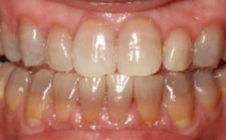 象牙質形成不全