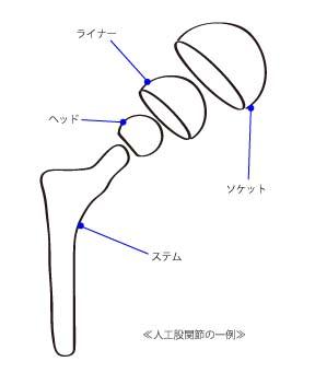 人工股関節