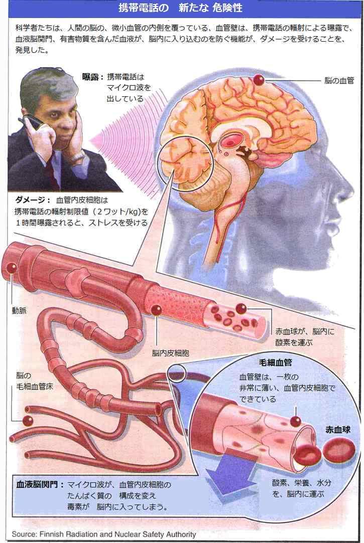 携帯電話の使用による、脳のダメージを防ぐには・・・テスラ 電話タグ