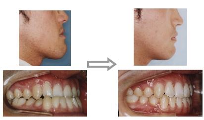 外科矯正(顎切矯正)治療前・後