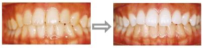 歯を白くするホワイトニング(漂白)