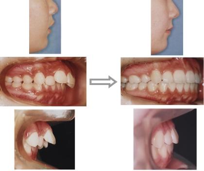 上顎前突の治療前・後