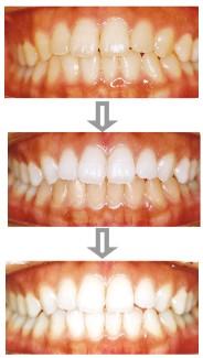 歯を白く輝かせるホワイトニング