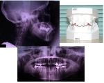 診断用の資料は、歯型やレントゲン写真など