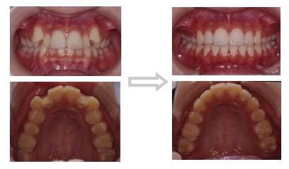 八重歯(叢生、デコボコ、乱杭歯)の治療前・後