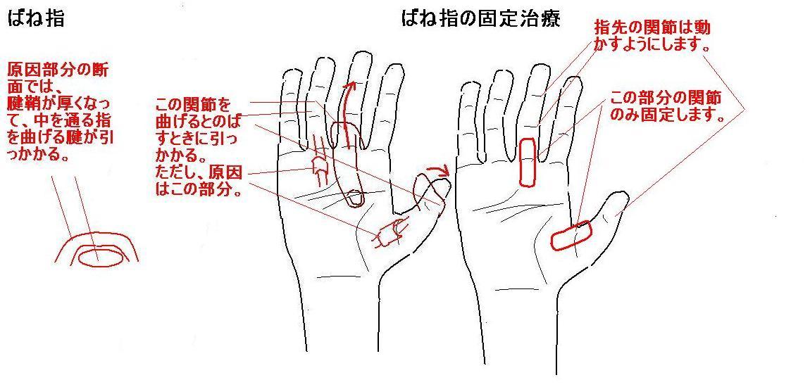 付け根 の 手のひら 痛い 親指 ふくらみ