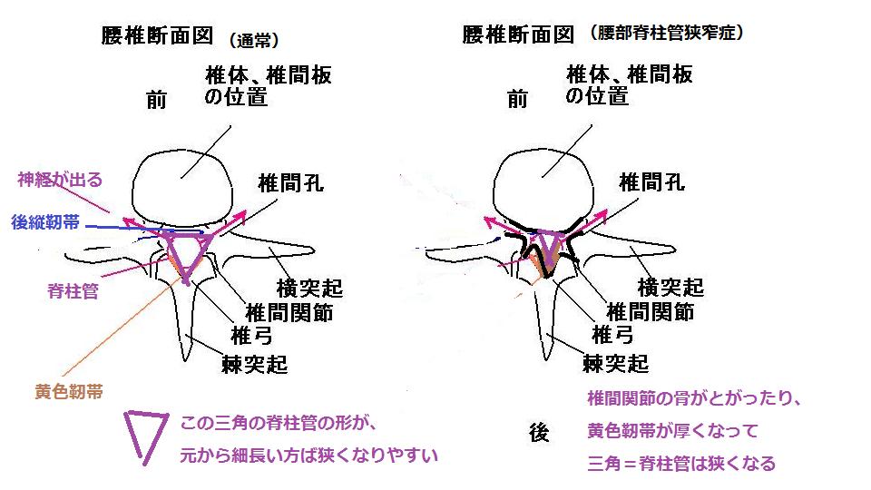 腰の脊柱管の変形