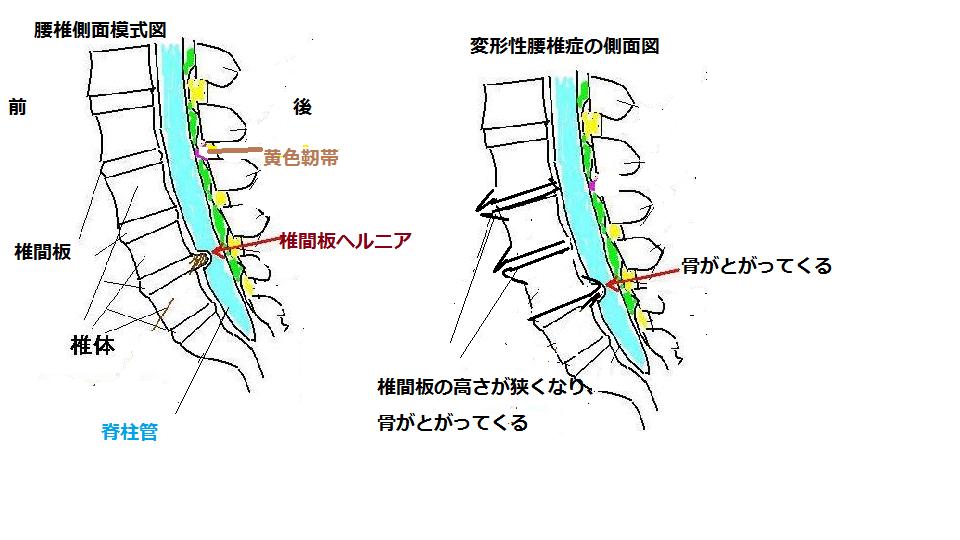 変形性腰椎症側面
