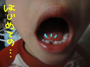 大人の歯だョ♪