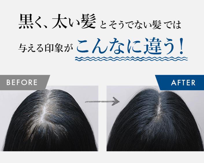 グロキシル育毛サプリ1