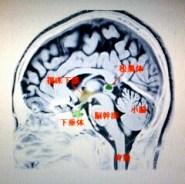 脳の断面解剖図