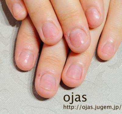 深爪矯正の長さ出し施術前のお爪。深爪矯正や噛み爪のことならネイルサロンojas京都にお任せください。はじめての方も安心です。