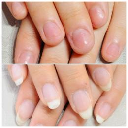 深爪矯正のビフォーアフター写真です。何年もの間短かった爪も今では長い爪になりました。京都カルジェル専門ネイルサロン&スクールojasです。