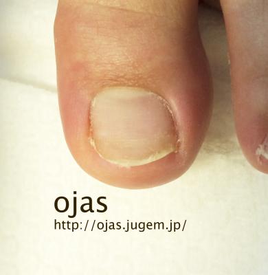 足の深爪矯正、折れた爪の補強、長さ出し足の深爪矯正で短かった爪もかなり伸び、通常の長さになりました。人工的に爪を延長することで、短かった爪は普通の爪と同じ見た目に出来ます。足の深爪や折れ、巻き爪も京都市北区北大路ojasへ
