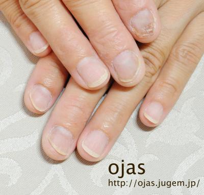 深爪矯正開始から3週間が経過した自爪です。ジェルで保護しているおかげでかなり伸びました!京都市北区北大路北山ネイルサロンojas