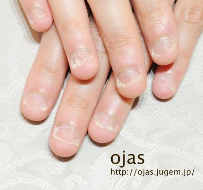 深爪矯正開始前の自爪です。爪周りの皮膚も硬くなっています。これからどんどん伸びます。お洒落しながら爪を伸ばせます。京都市北区北大路北山ネイルサロンojas