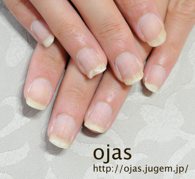 深爪矯正開始から約3ヶ月が経過。かなり伸びました。深爪やショートネイルの方もお洒落しながら爪を伸ばせます。京都市北区北大路北山ネイルサロンojas